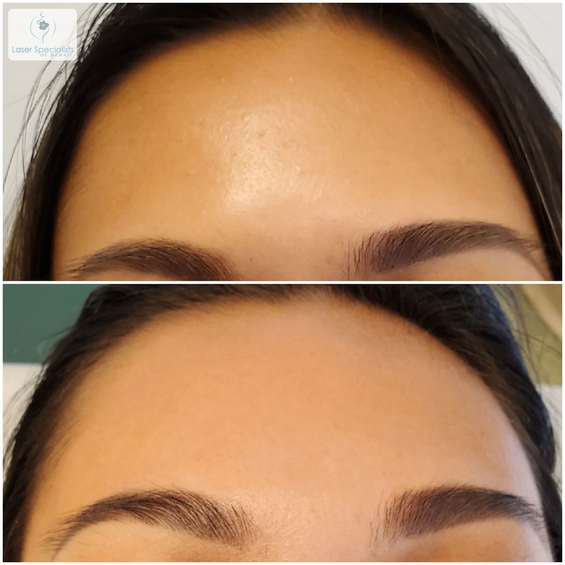 A woman's forehead before and after a carbon peel treatment