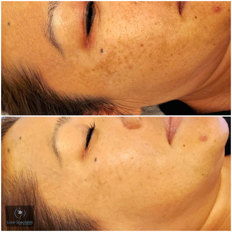Before and after photo of a woman who had dermaplaning treatment