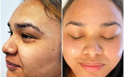 Amazing Results by Pairing a Carbon Peel with Dermaplaning