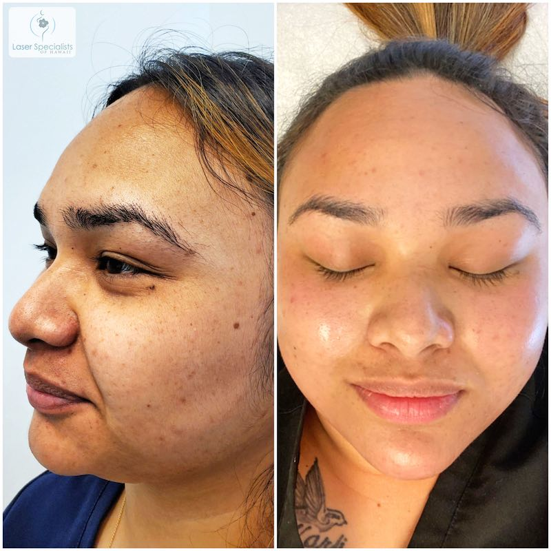 Before and after photo of a woman who had dermaplaning and carbon peel treatment