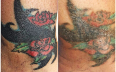 20Year Old Multi-Colored Tattoo Removed by Laser Tattoo Removal
