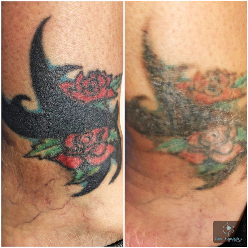 Before and after photo of a person who had a laser tattoo removal treatment
