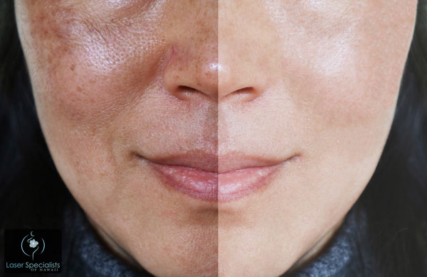 Before and after photo of a woman who had a laser hair removal treatment