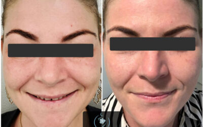 Rejuvenating the Skin with Microneedling